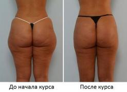 Знижка 20% до 14 лютого на масаж (програма АНТИ-ЦЕЛЮЛІТ)